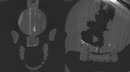 Prayer bead in the form of a skull, AGO ID 29283. Micro CT scans showing construction of clasp (left) and cross-section of skull (right). The Thomson Collection of European Art © Art Gallery of Ontario. Scans courtesy of Sustainable Archaeology at Western University